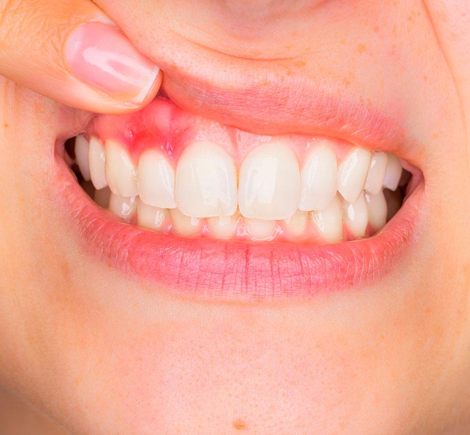 parodontie-seguineau