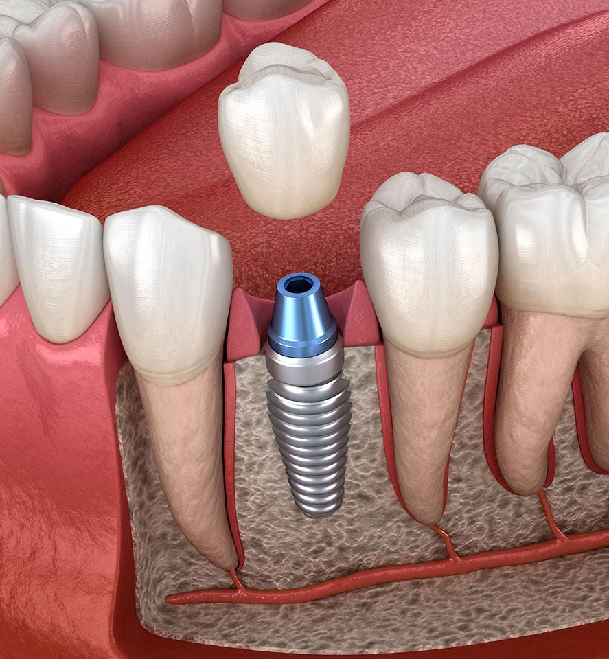seguineau-implant
