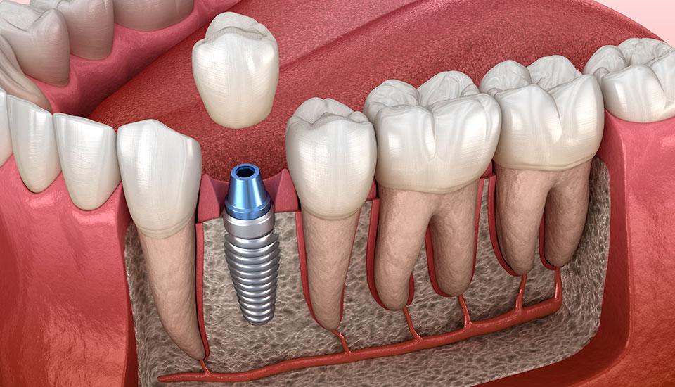 seguineau-implants2