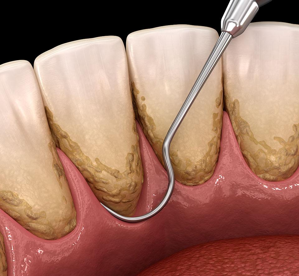 seguineau-parodontal